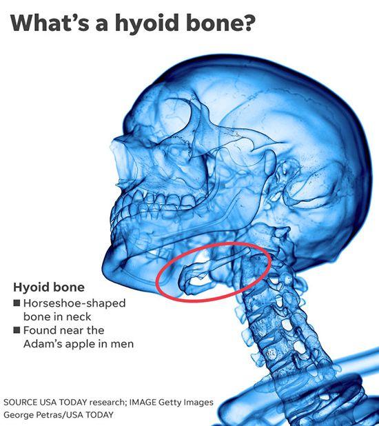 Mystery Surrounds Hyoid Break In Epstein Death